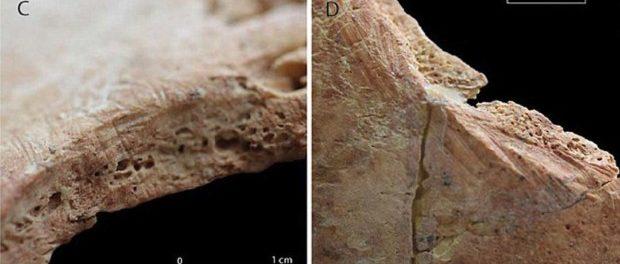 Зачем сверлили дырки в головах 11 тысяч лет назад?