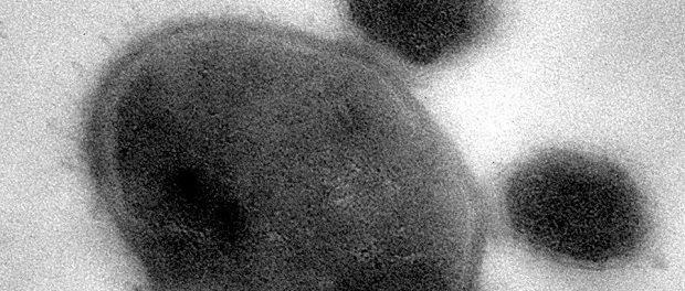 Ученые обнаружили вчеловеческой слюне самых маленьких разрушительных паразитов